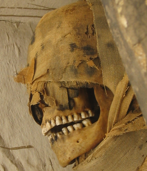 That winning smile—Many ancient Egyptians suffered from horrible tooth pain (Photo courtesy of Henry W. Schmitt)
