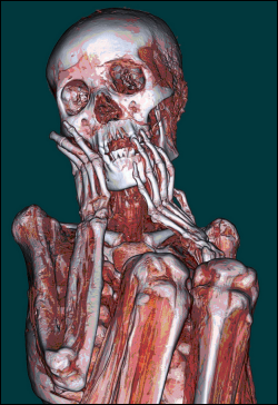 Non-invasive methods such as this CT Scan of a Peruvian mummy allow for better analysis of mummies with minimal risk of damage (Photo by Official U.S. Navy Imagery)