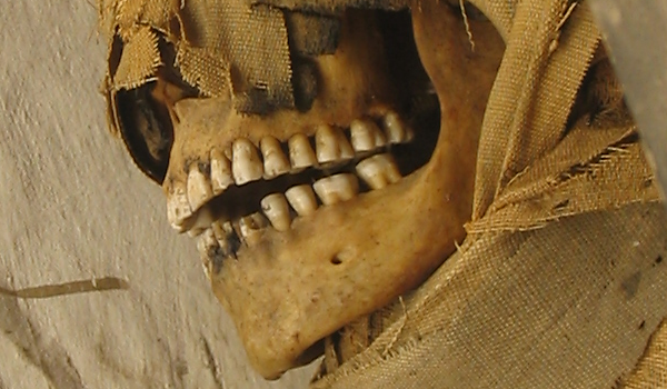 Mummy teeth can tell us about the age, diet, habits, lifestyle, and social class of people who lived thousands of years ago (courtesy of the Rosicrucian Museum)