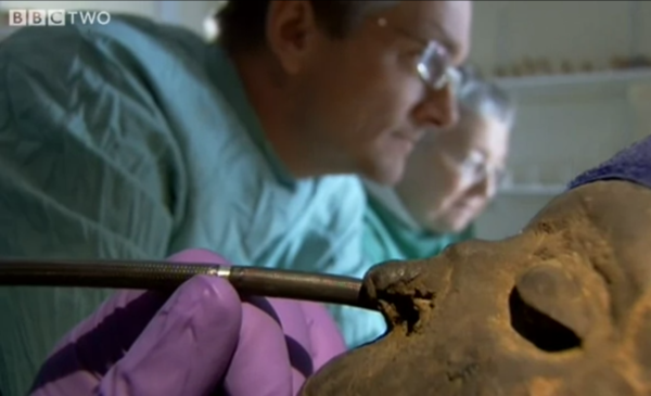 Dr. Michael Mosely and Egyptologist Rosalie David perform and endoscopy on a mummy (courtesy of BBC Two)