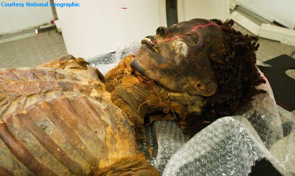 CT scan analysis of the 3,500-year-old mummy of Ahmose-Meryet-Amon, a Theban princess who died in her 40's, suffered from hardening of the arteries (Courtesy of National Geographic)